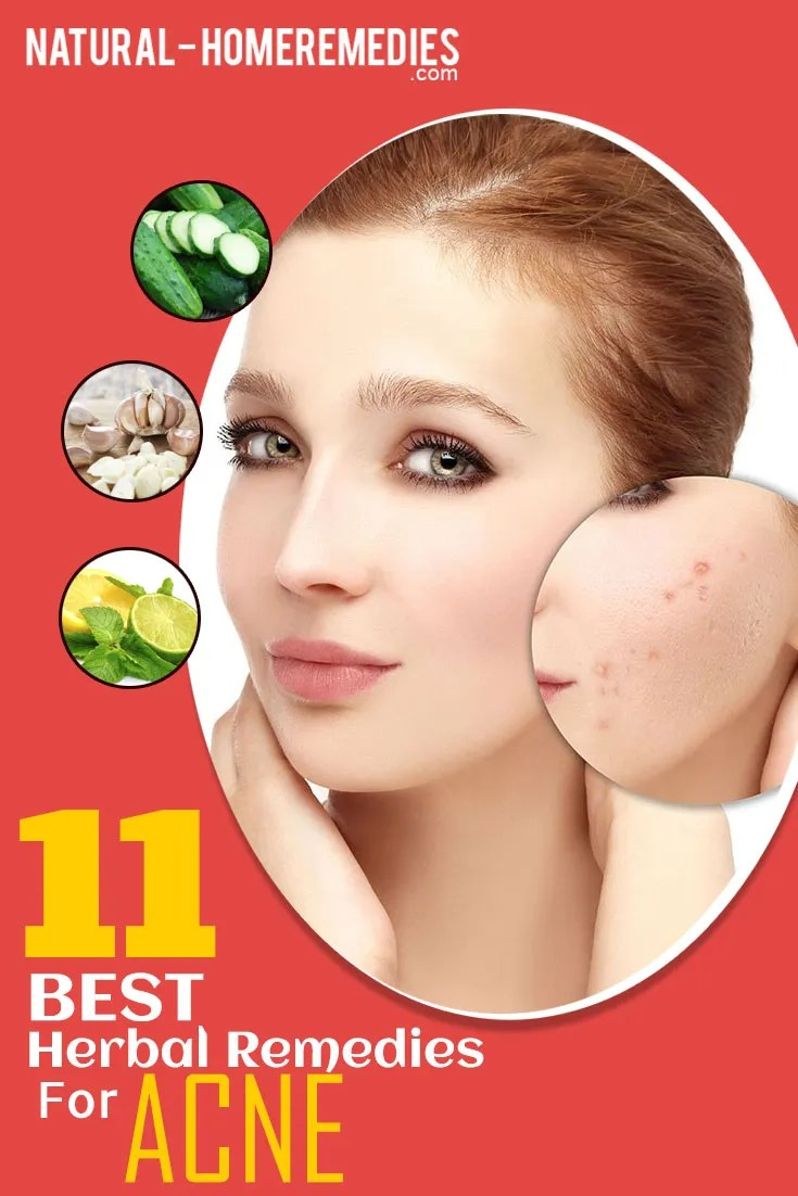 11-Best-Herbal-Remedies-For-Acne