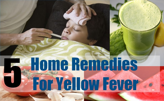 5 Home Remedies For Yellow Fever