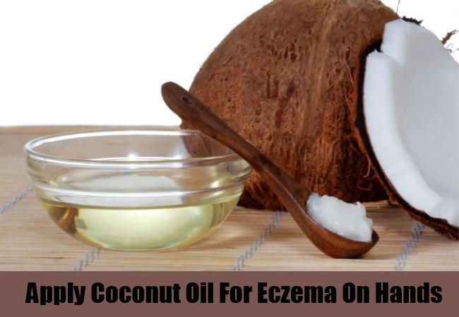 Apply Coconut Oil