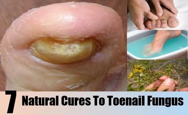Natural Cure To Toenail Fungus