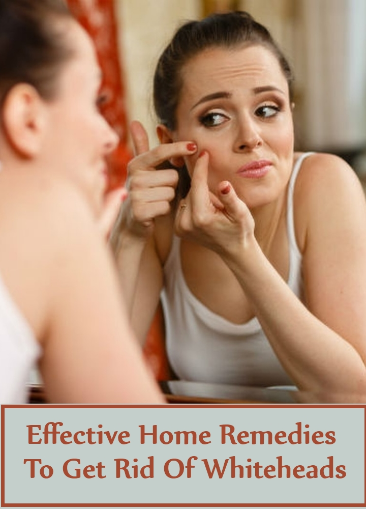 Effective Home Remedies To Get Rid Of Whiteheads