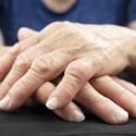 11 Home Remedies For Rheumatoid Arthritis