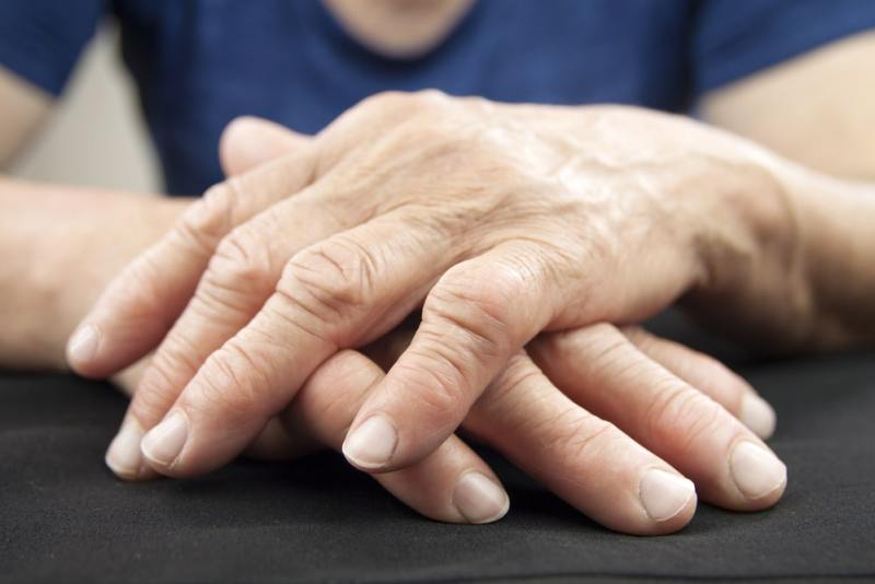 11 Home Remedies For Rheumatoid Arthritis