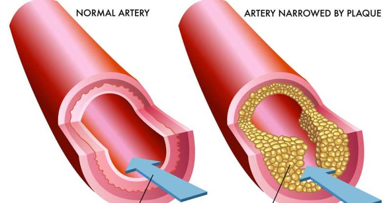 9 Home Remedies for Atherosclerosis