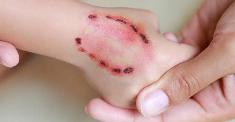 Tetanus (Lockjaw): Causes, Symptoms, & Treatment