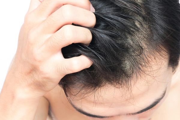 Itchy Scalp At Night
