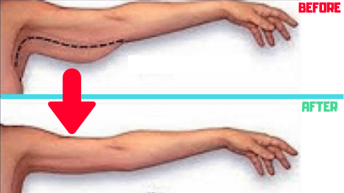 How To Shed Stubborn Arm Fat