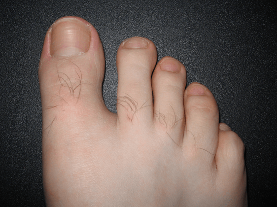 How to avoid from Toenail Fungal Infection