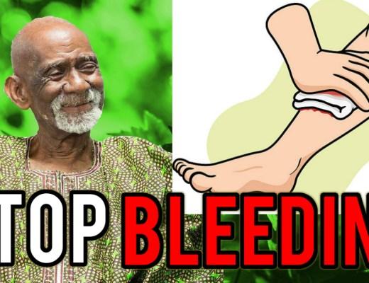Bleeding Dr Sebi