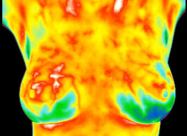 breast ny Thermography suffolk