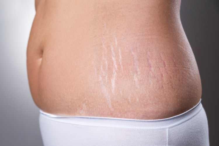 Why Stretch Marks Occurs and How to Get Rid of Stretch Marks