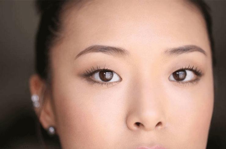 esempio di occhio mongolico