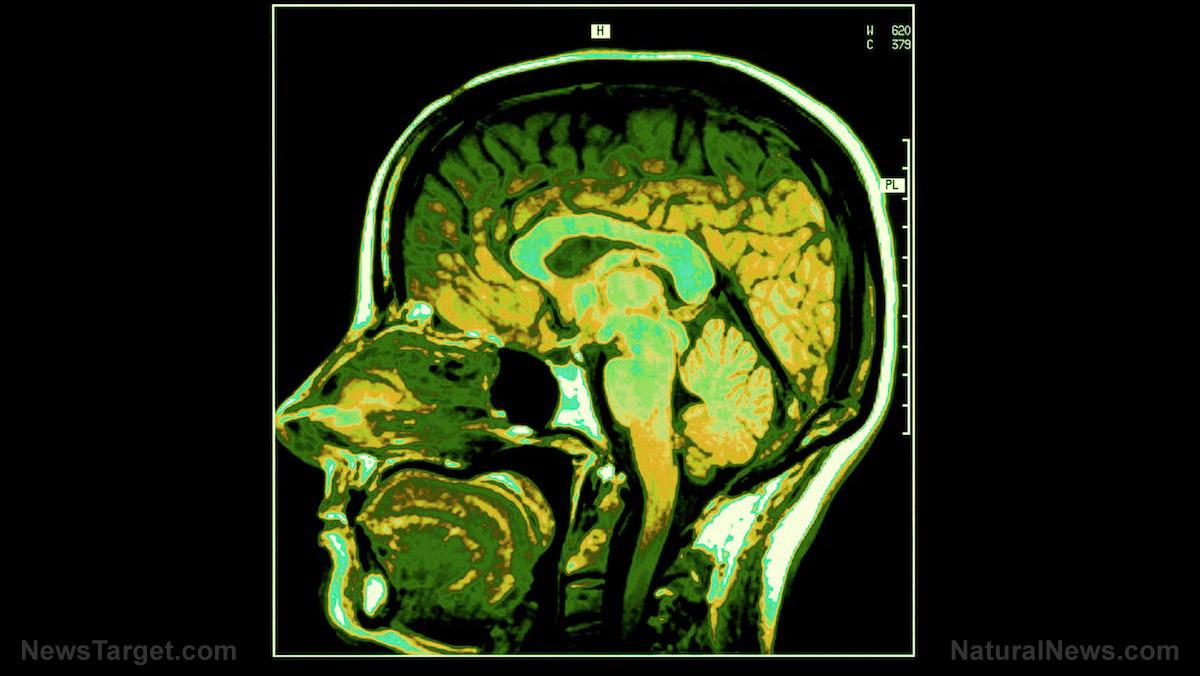 圖像:科學家驚訝地發現腸道細菌似乎控制著你的心情和大腦功能