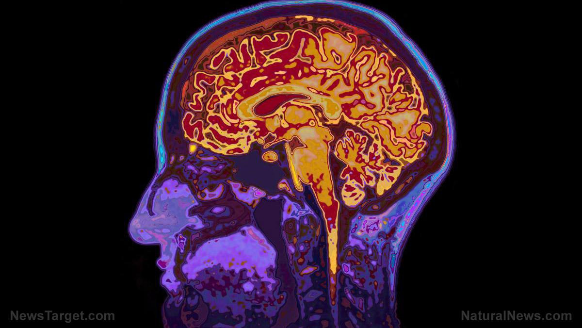 Mri-Image-Head-Showing-Brain.jpg