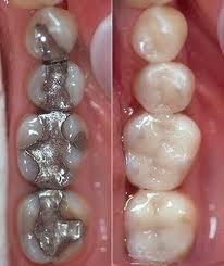 Natural-smile-cambio-seguro-de-amalgamas-diseño-de-sonrisa- (8)