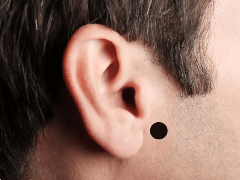 Ear Acupressure Point