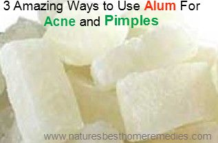 using alum on acne