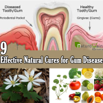 9 effective natural cures for gum disease treat gum disease naturallynatural cures for gum disease