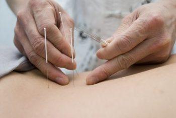 Acupuntura, un tratamiento natural