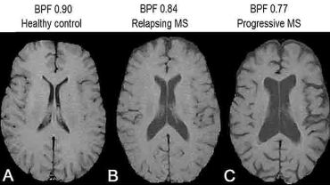 Three cerebral MRI scans of the brain, showing a healthy control and two cases of Multiple Sclerosis.