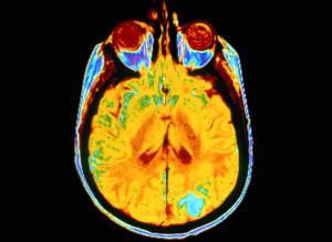 An MRI (magnetic resonance imaging) brain scan.