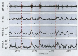 A series of graphs illustrating human physiology network synchronicity.