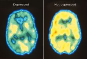 A set of PET scans showing brain activity in the depressed brain versus a control.