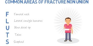 What are the common areas of fracture non union