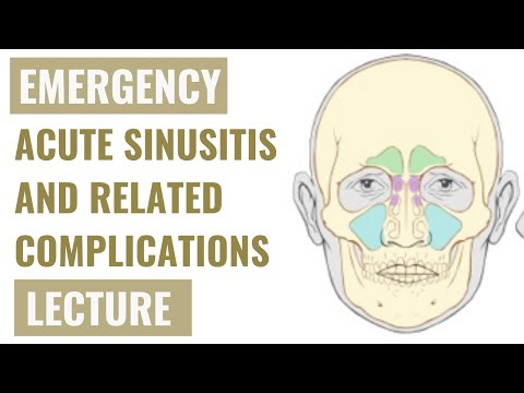 Acute Sinusitis AND Complications