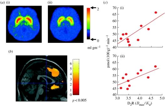 Brain Glucose Metabolusm