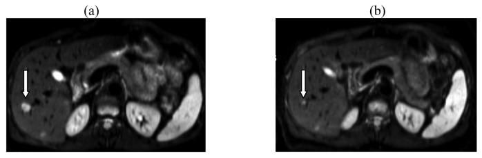 Eine externe Datei, die ein Bild, eine Illustration usw. enthält. Der Objektname lautet cancers-03-01454f1.jpg