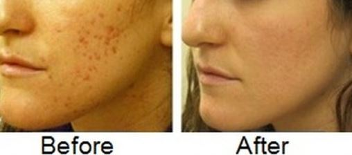 lemon juice and honey to clear acne