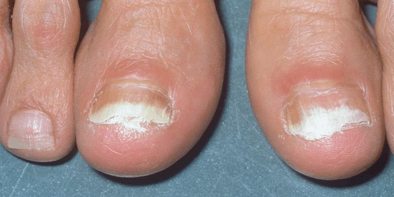 white toenail fungus in contrast to black toenail cancer or fungus