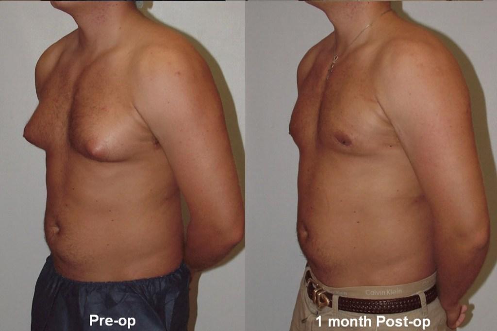 Gynecomastia (Man Boobs) Causes, Facts, And Treatment 2