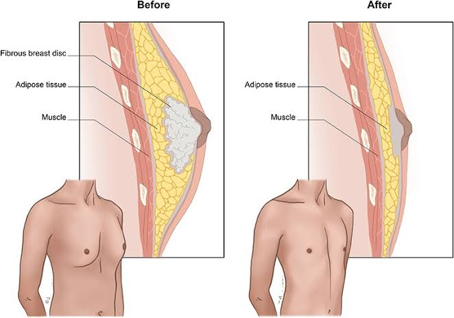 Tissue growth in gynecomastia