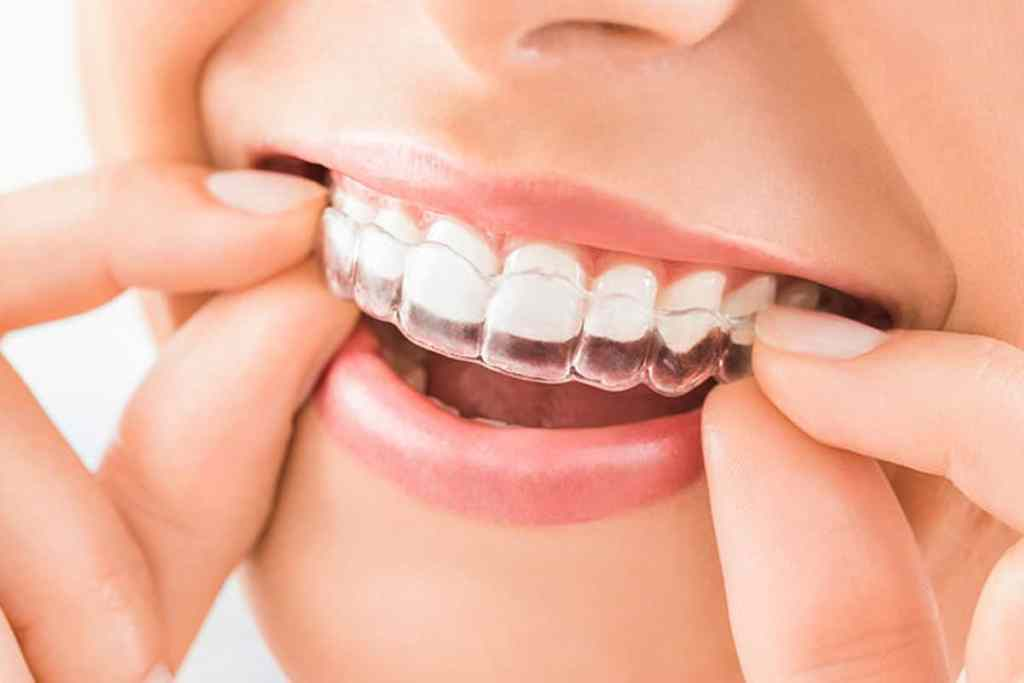 transparent Invisalign dental aligners