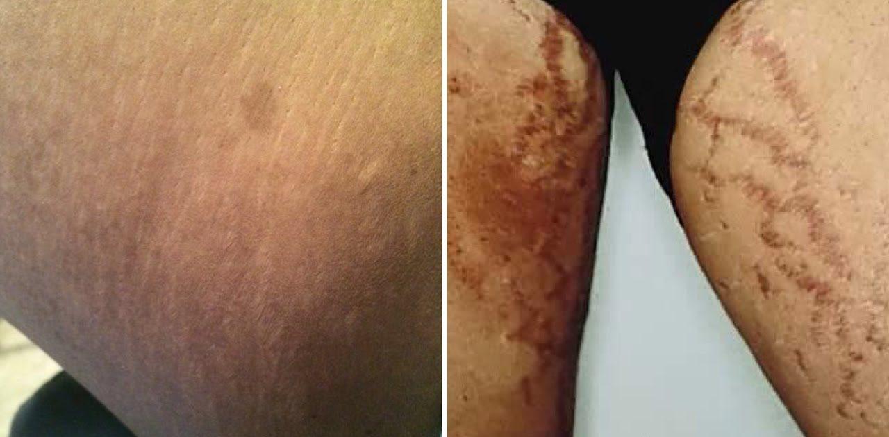 dark inner thighs