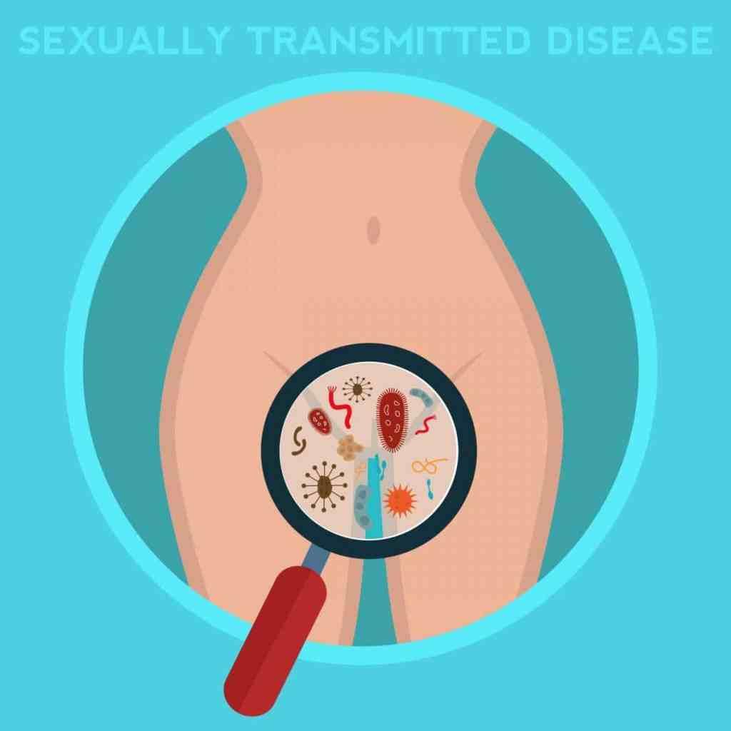 mycoplasma genitalium in women