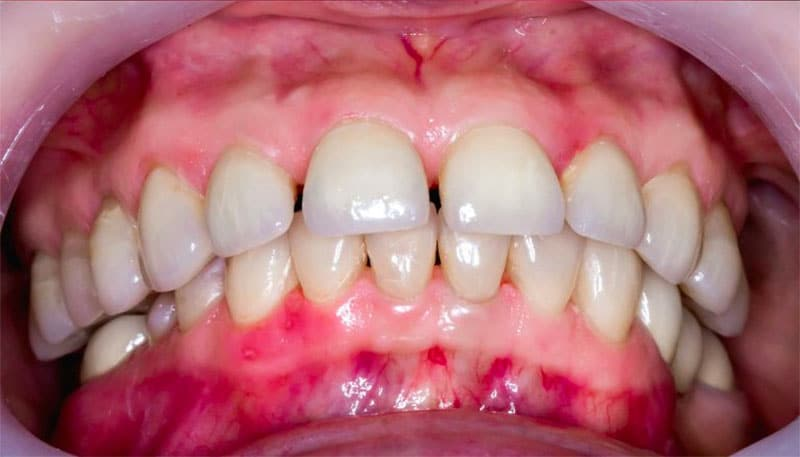 Signs Of Periodontal Disease and periodontitis