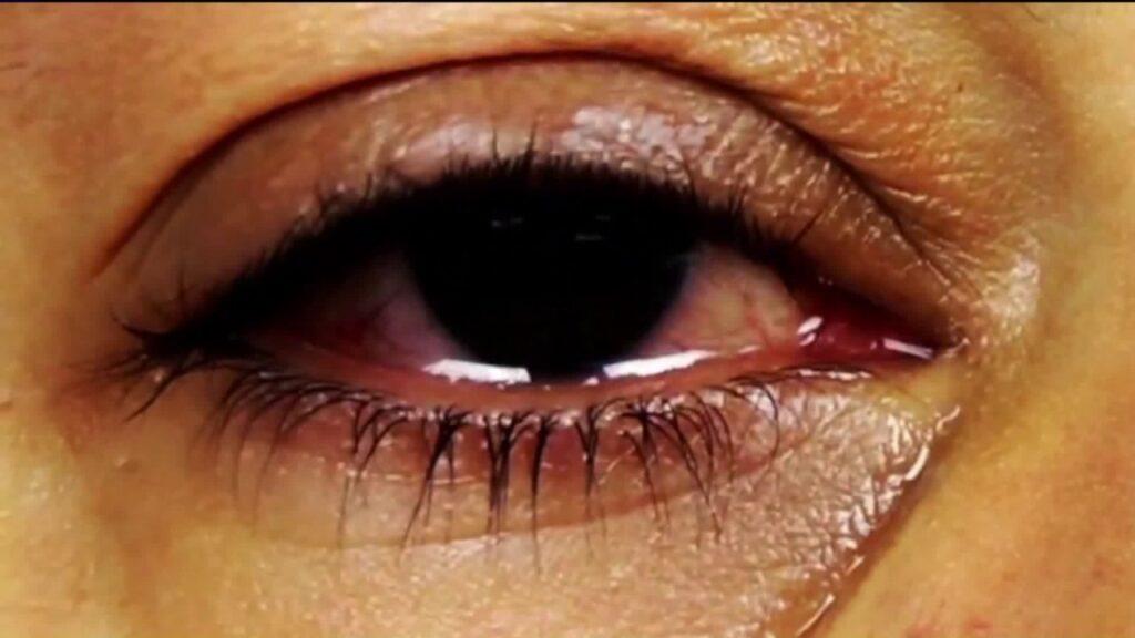 tearing eyes
