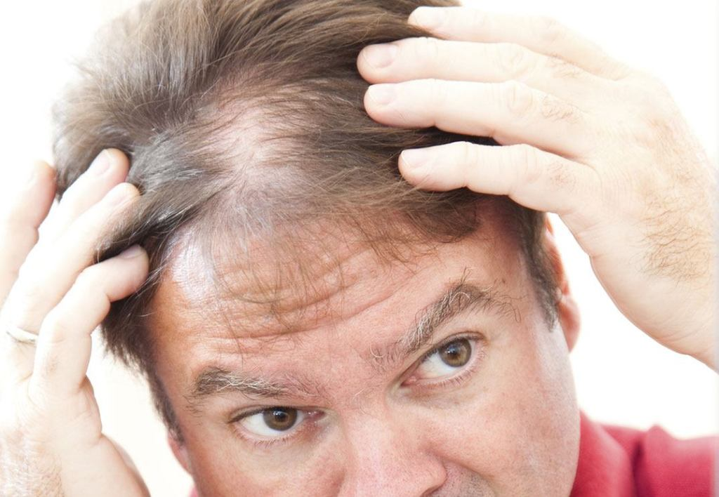 keep hair straight and avoid thinning hair or bald hair