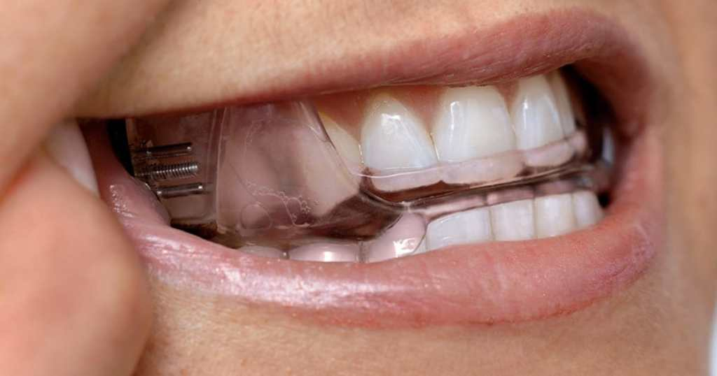 Mandibular Advancement Device for sleep apnea and snoring