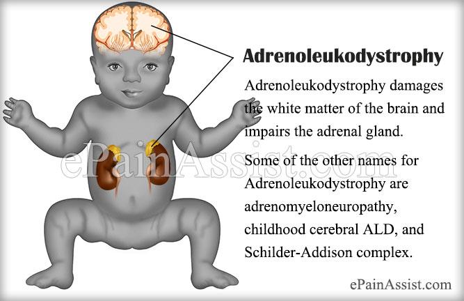 childhood cerebral adrenoleukodystrophy (cald)