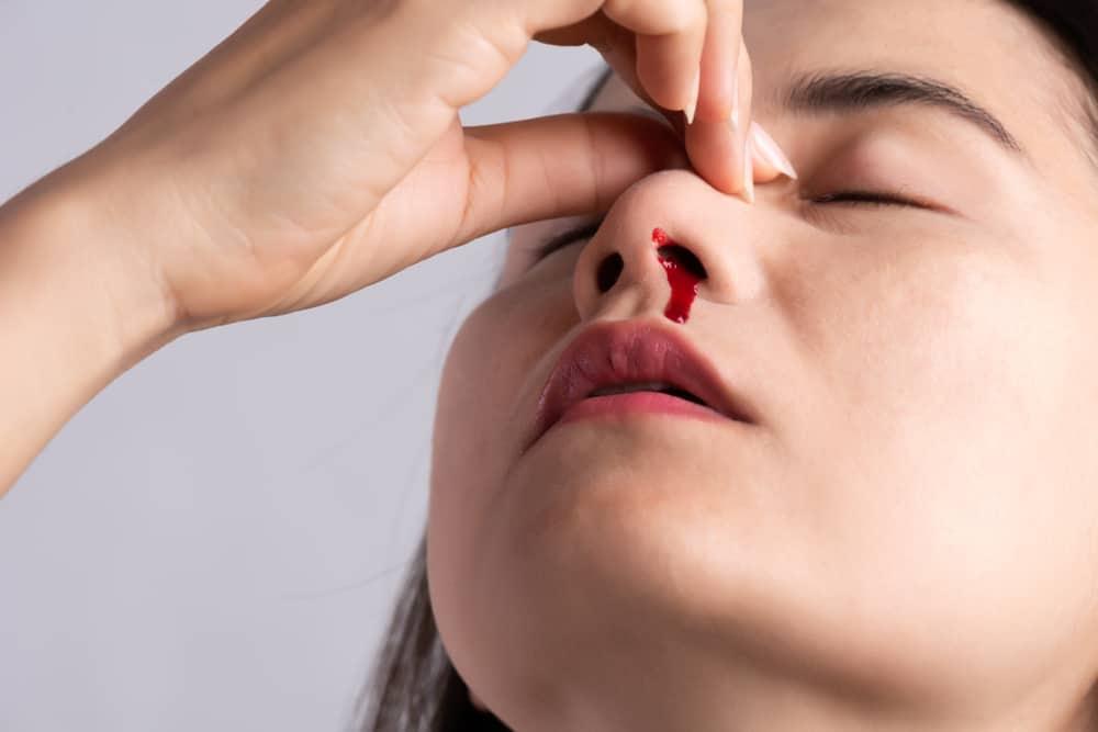 nasal trauma or nasal injury