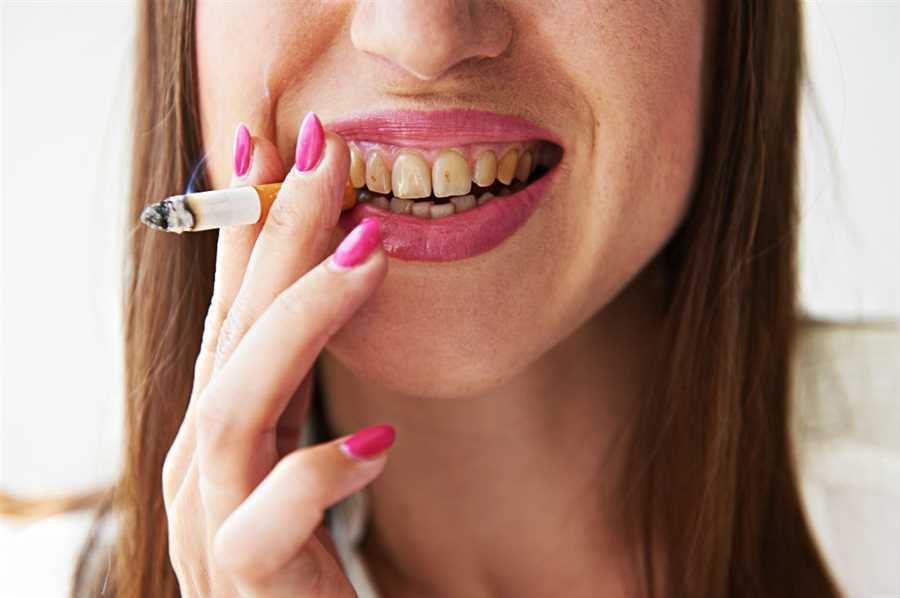 How Long Does It Take For Smoking To Affect Your Teeth?