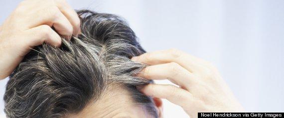 gray hair scalp
