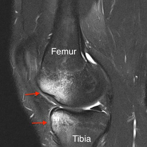 bone contusion on knee MRI