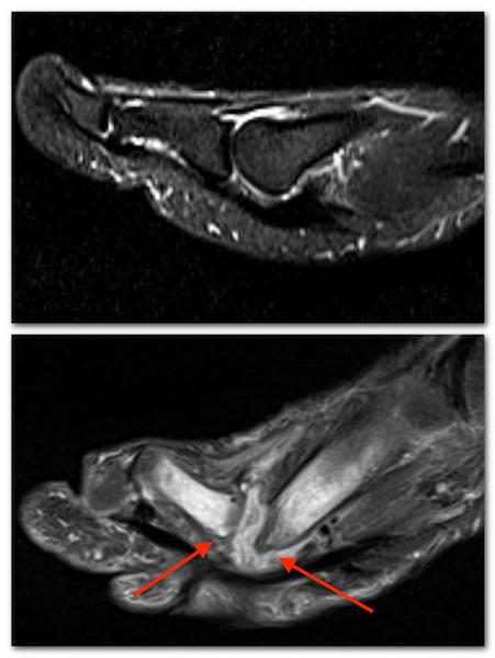 osteomyelitis of the big toe