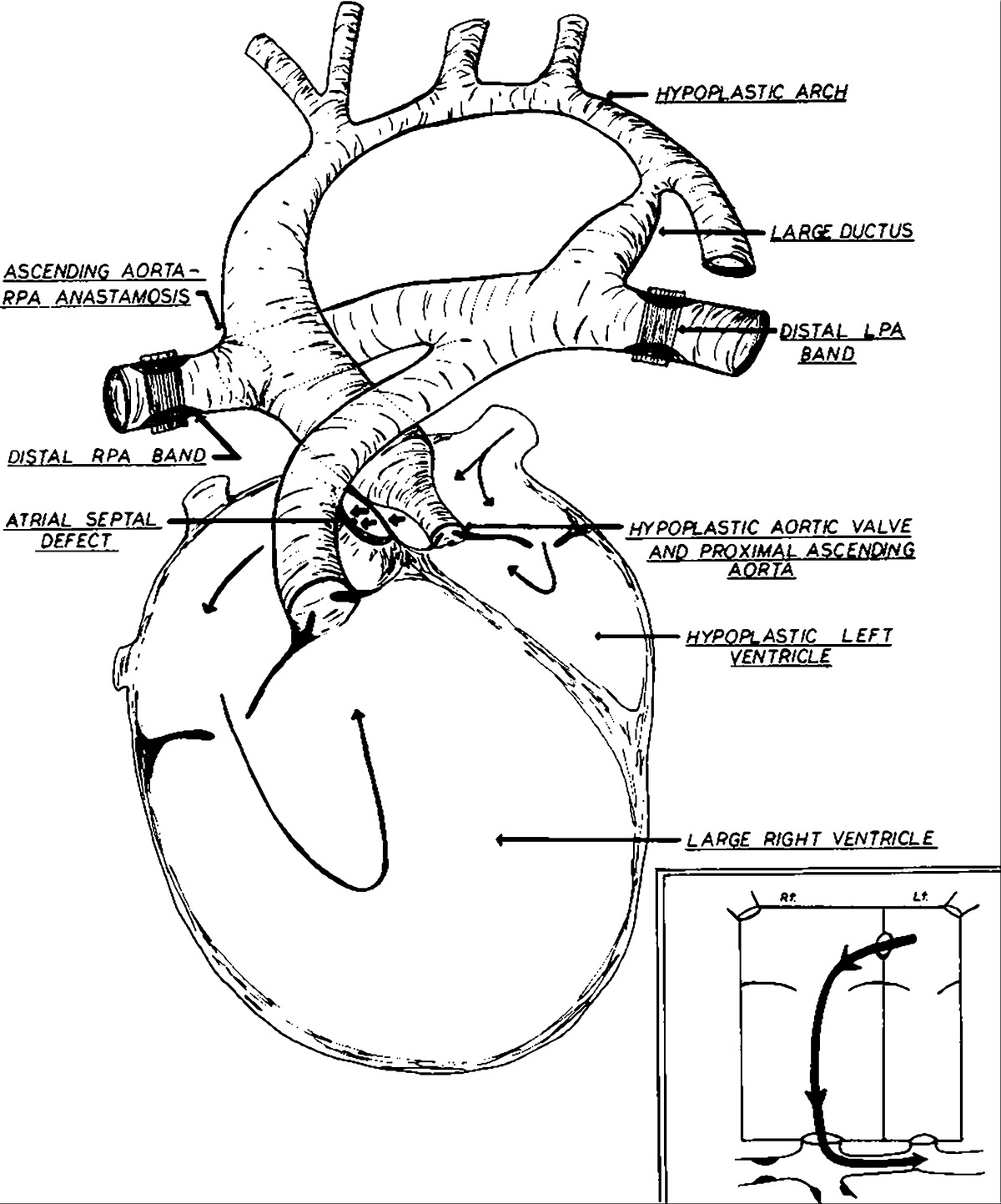 Surgical Palliation Of Hypoplastic Left Side Of The Heart