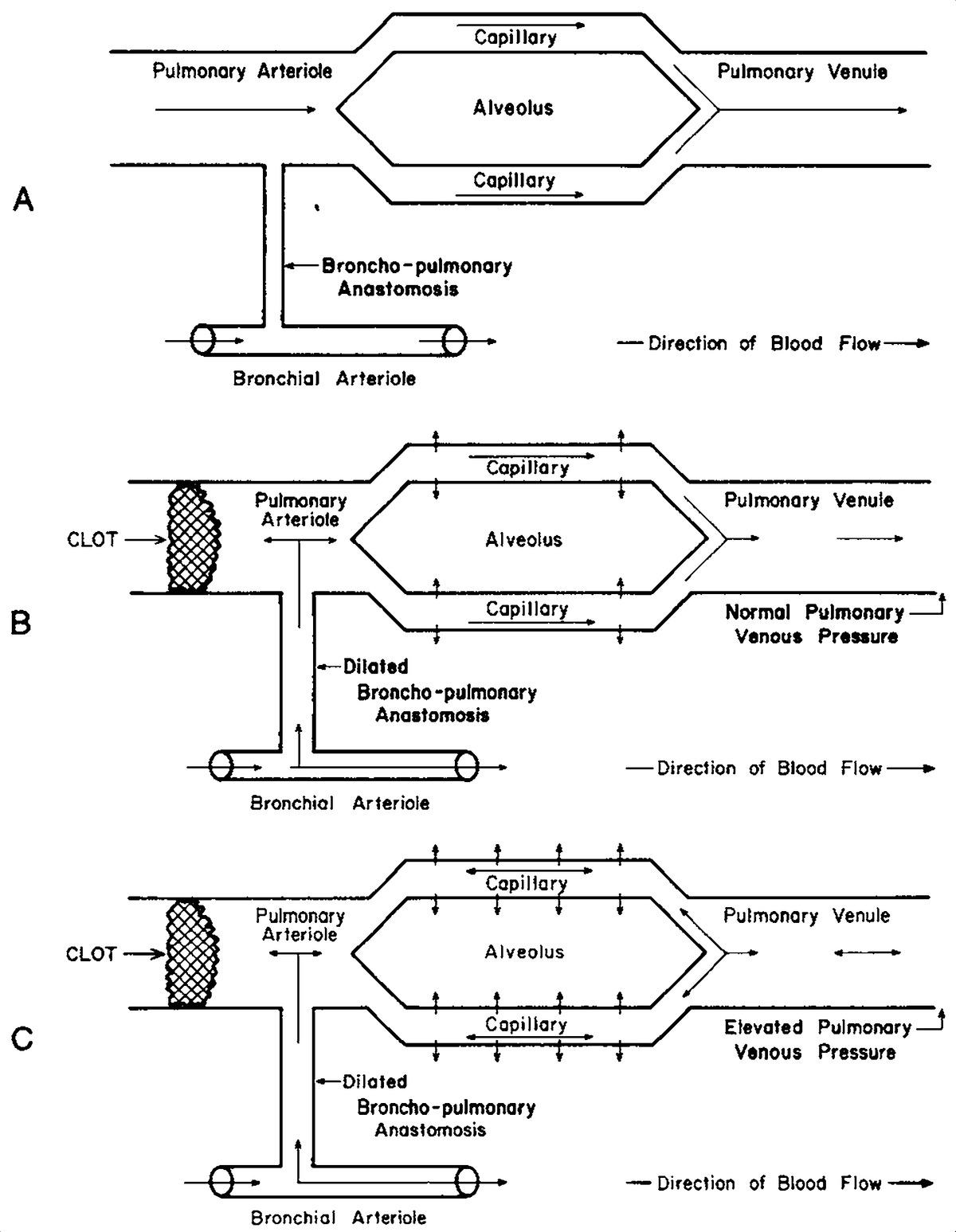Pulmonary Embolism Pulmonary Hemorrhage And Pulmonary